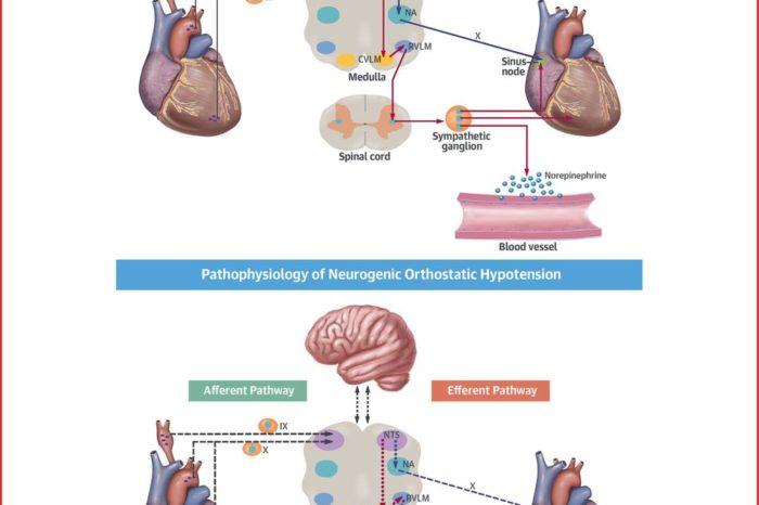 Hipotension ortostatica - IntraMed