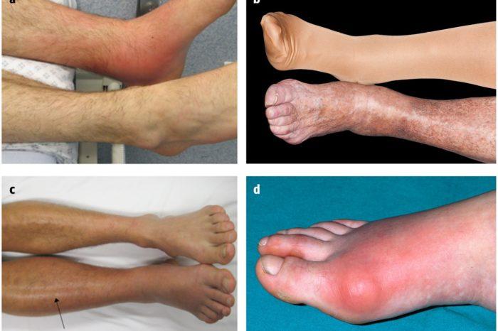 """¿Como diferenciar la celulitis de otras causas de """"piernas rojas""""?"""