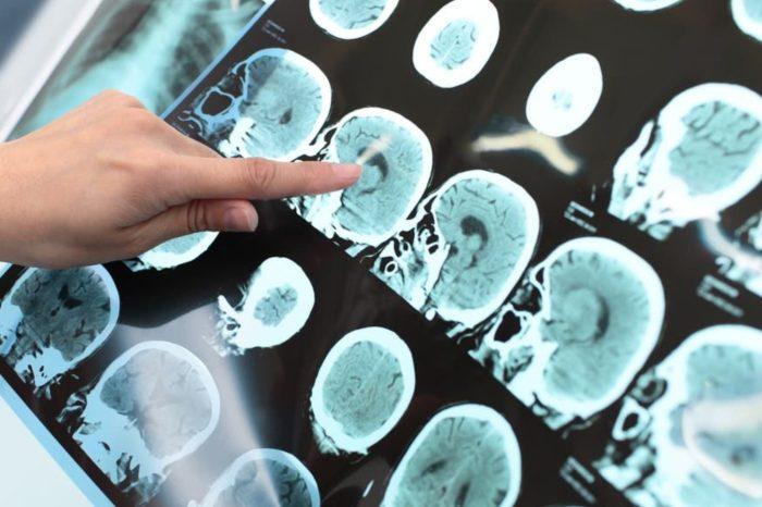 ¿Que es la esclerosis multiple? Sus sintomas y consecuencias