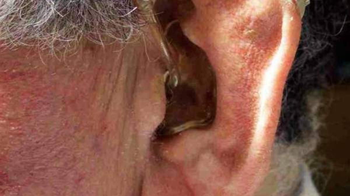 La OCU denuncia la venta por Internet de un producto milagro contra la sordera