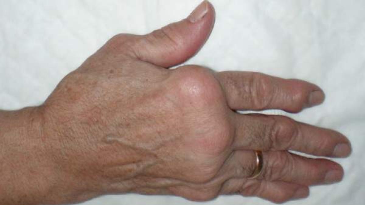¿Que es el sindrome de Reiter? Causas, sintomas y tratamiento