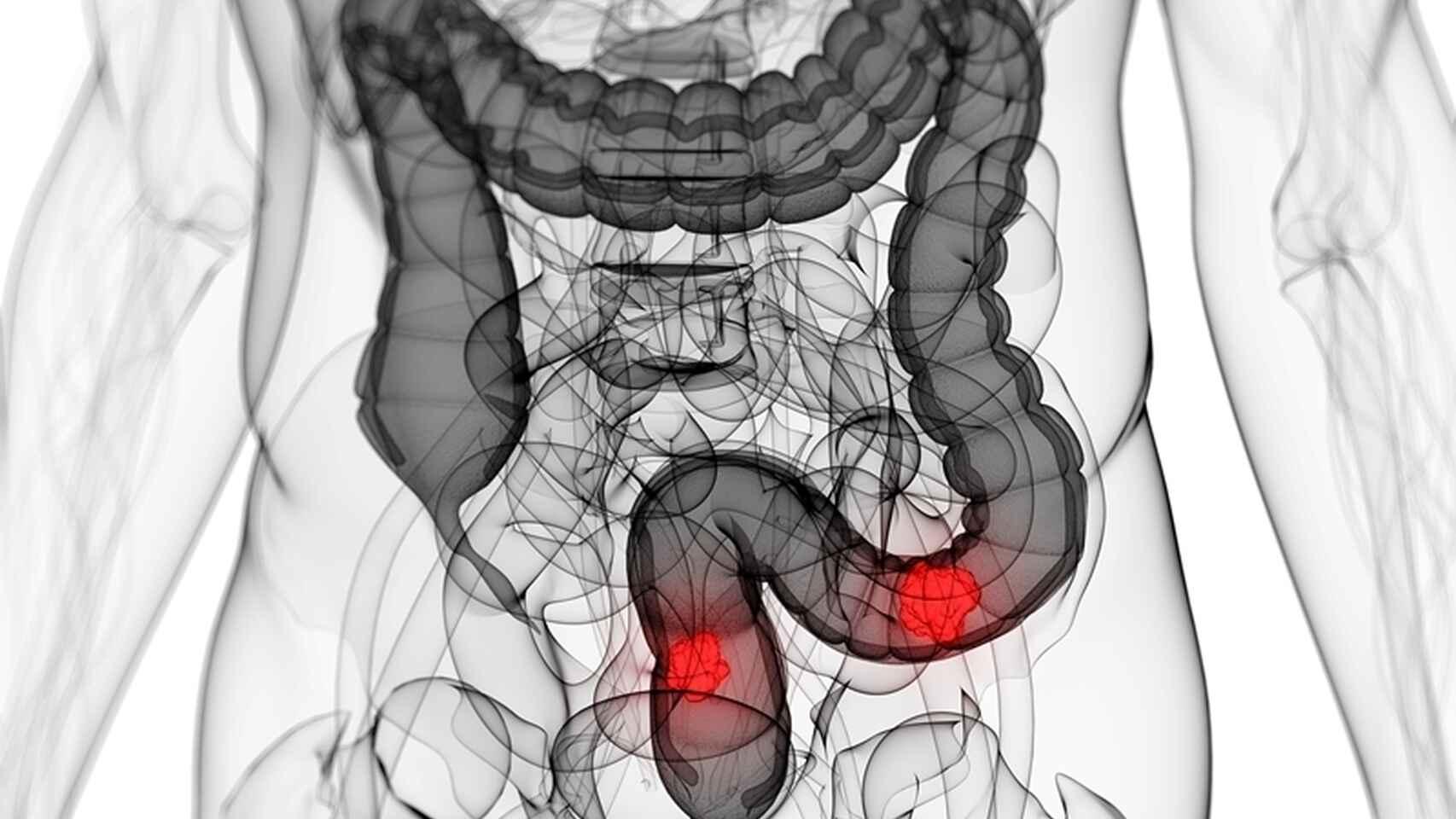 El alarmante aumento del cancer de colon en los jovenes: las claves para disminuir el riesgo
