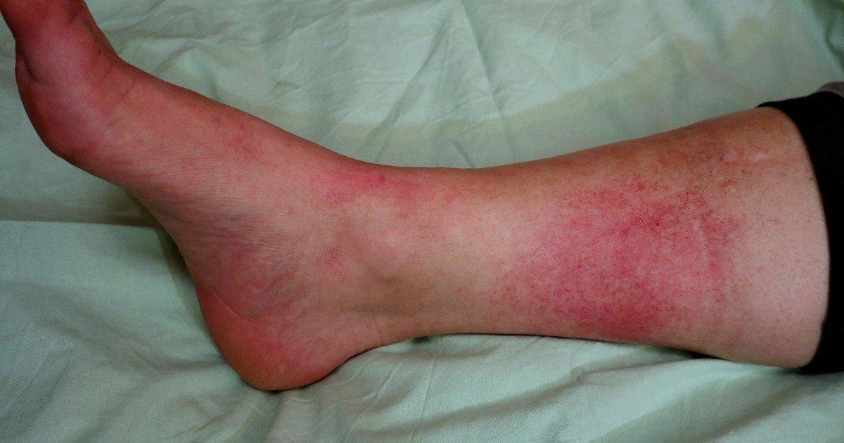 Que es la erisipela, una dolorosa infeccion de la piel