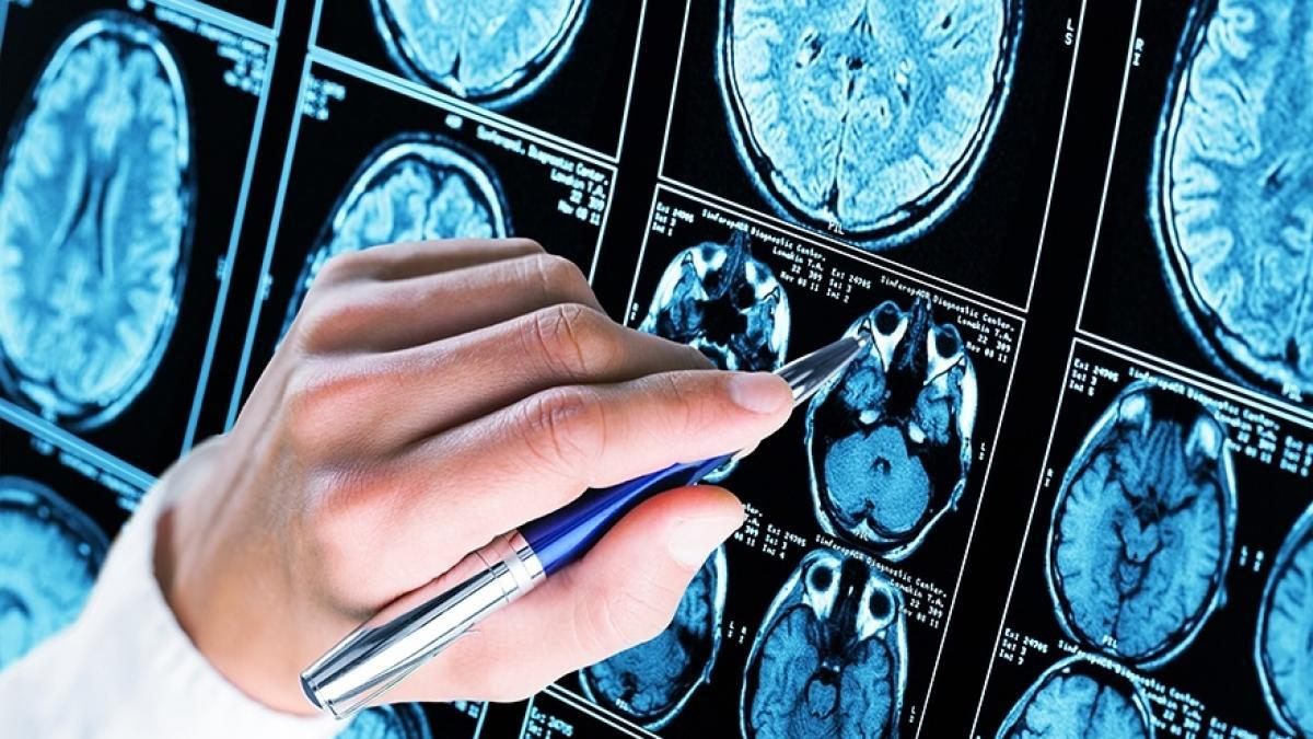 Identifican diez grandes factores de riesgo para prevenir el alzheimer