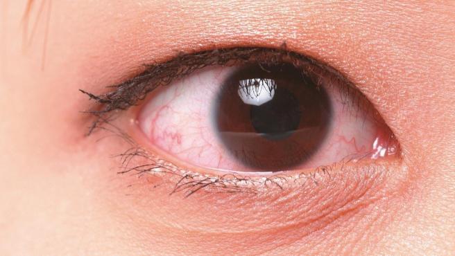 Por que deberias aprovechar la semana del bienestar de los ojos de Amazon para aprender a cuidarlos en verano
