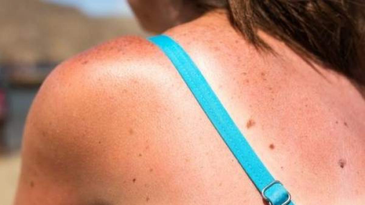 Alertan de que este verano se estan detectando mas manchas en la piel de lo normal
