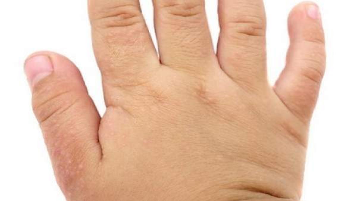 Guia para pacientes con dermatitis atopica: por que se produce, complicaciones y tratamiento