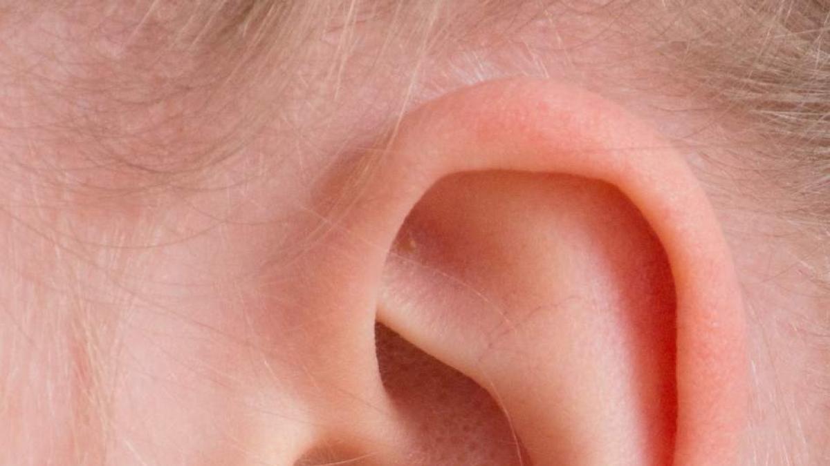 Identifican una variante genetica hereditaria como causa de sordera