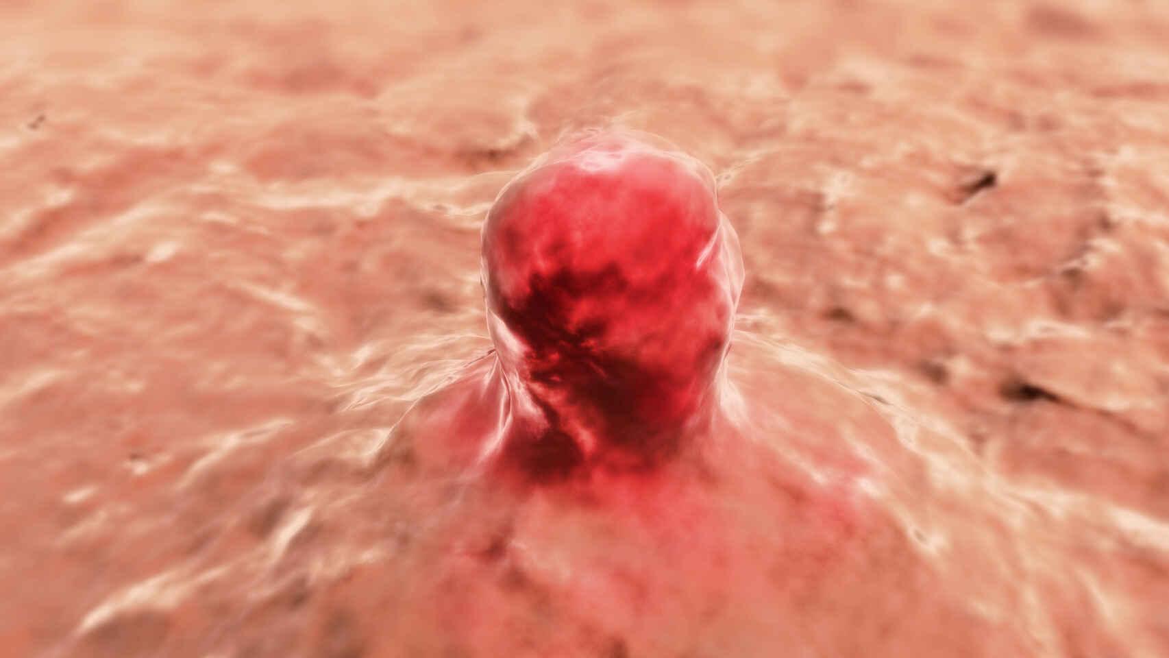 Golpe español al cancer: frenan el melanoma y los tumores de riñon en ratones