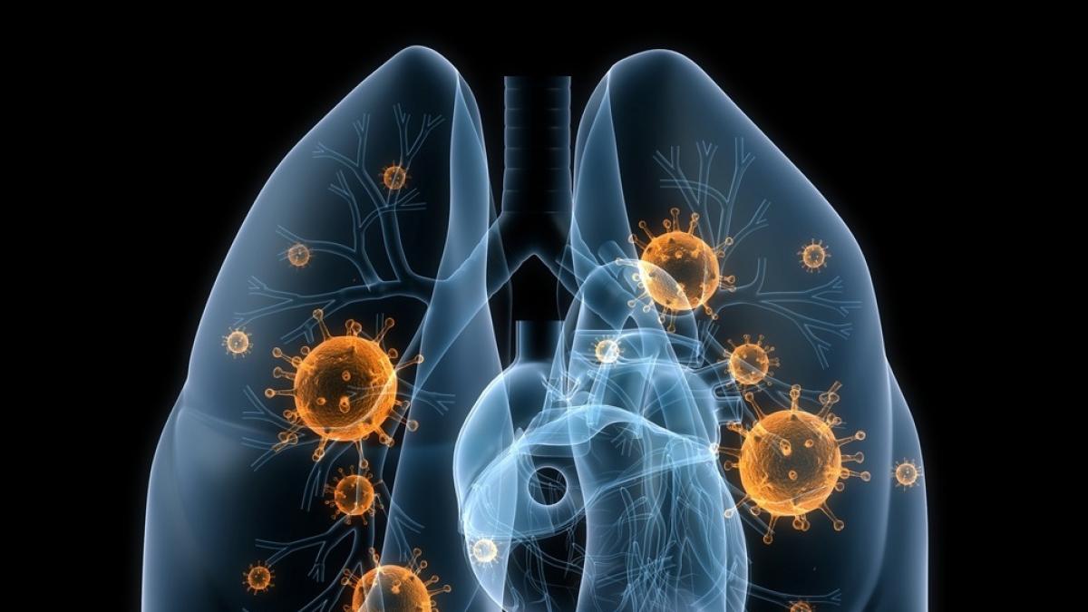 Descubren que el cancer de pulmon en no fumadores es una enfermedad distinta a la de fumadores