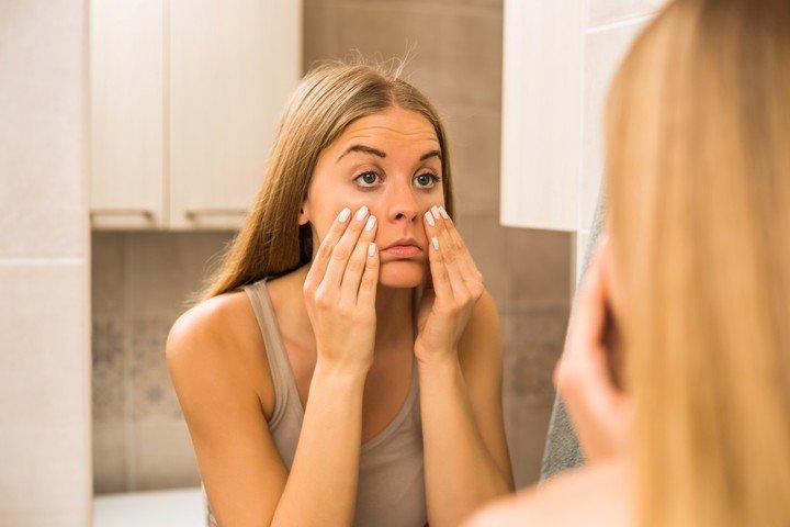 La disminucion del colageno en la piel genera la aparicion de arrugas y lineas de expresion.