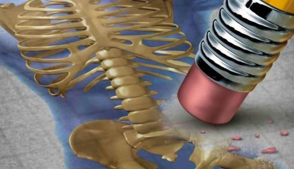 La importancia de la osteoporosis. Una enfermedad infravalorada