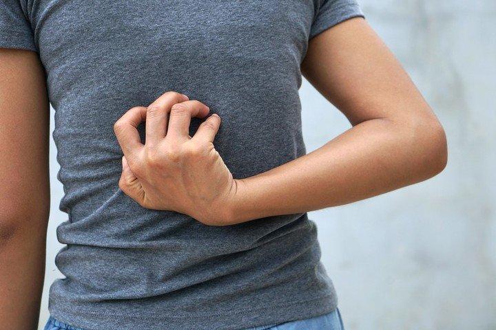 Dermatitis atopica: como tratar las complicaciones que traen el frio y la pandemia