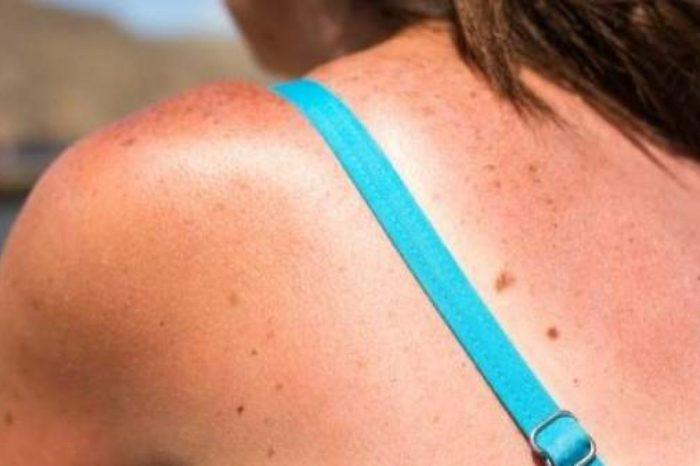 Como tratar las quemaduras del sol en niños