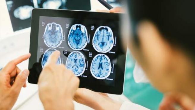 Un estudio español señala que el 15% de los pacientes Covid-19 hospitalizados desarrollan trombosis asintomaticas