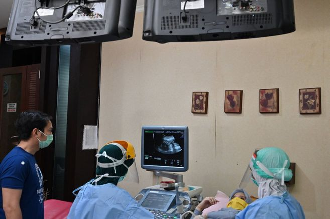 Embarazadas, ¿en mayor riesgo por el COVID-19?