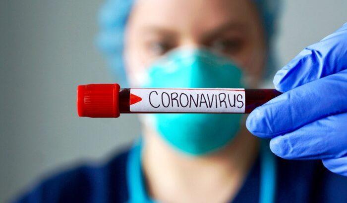Coronavirus en Argentina: con 48 nuevas muertes, son 8.401 los fallecidos en todo el pais y 401.239 los casos confirmados
