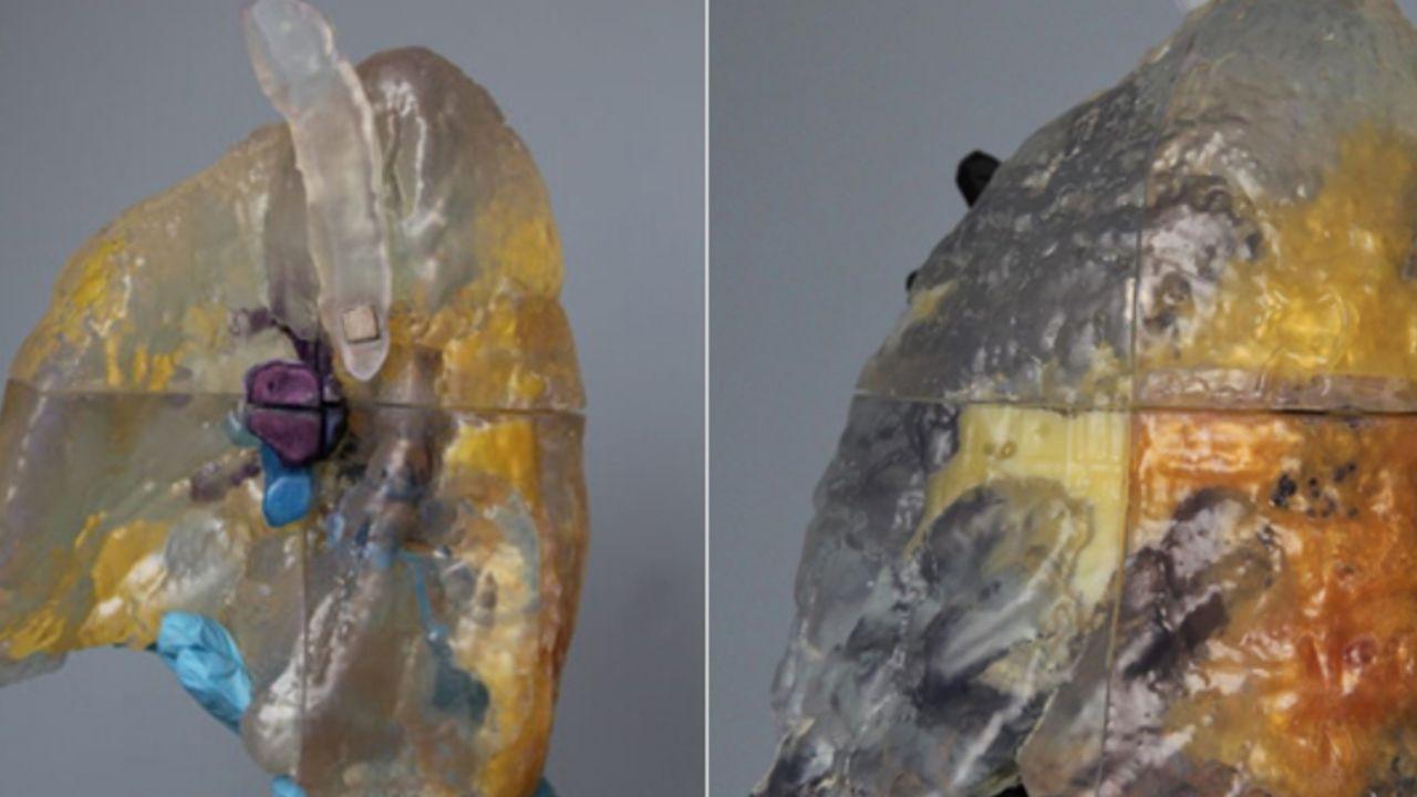 En 3D: asi se ven los pulmones afectados por COVID 19
