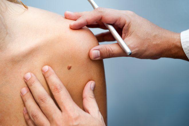 Detectar los lunares malignos en la piel: descubre como hacerlo