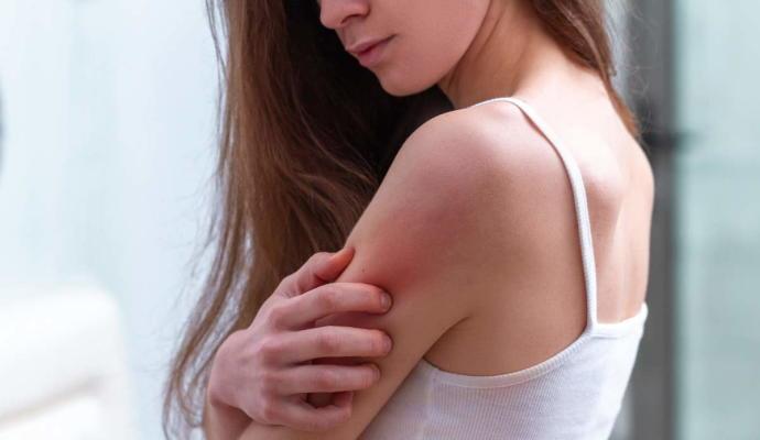 Como calmar las molestas irritaciones del verano en nuestra piel