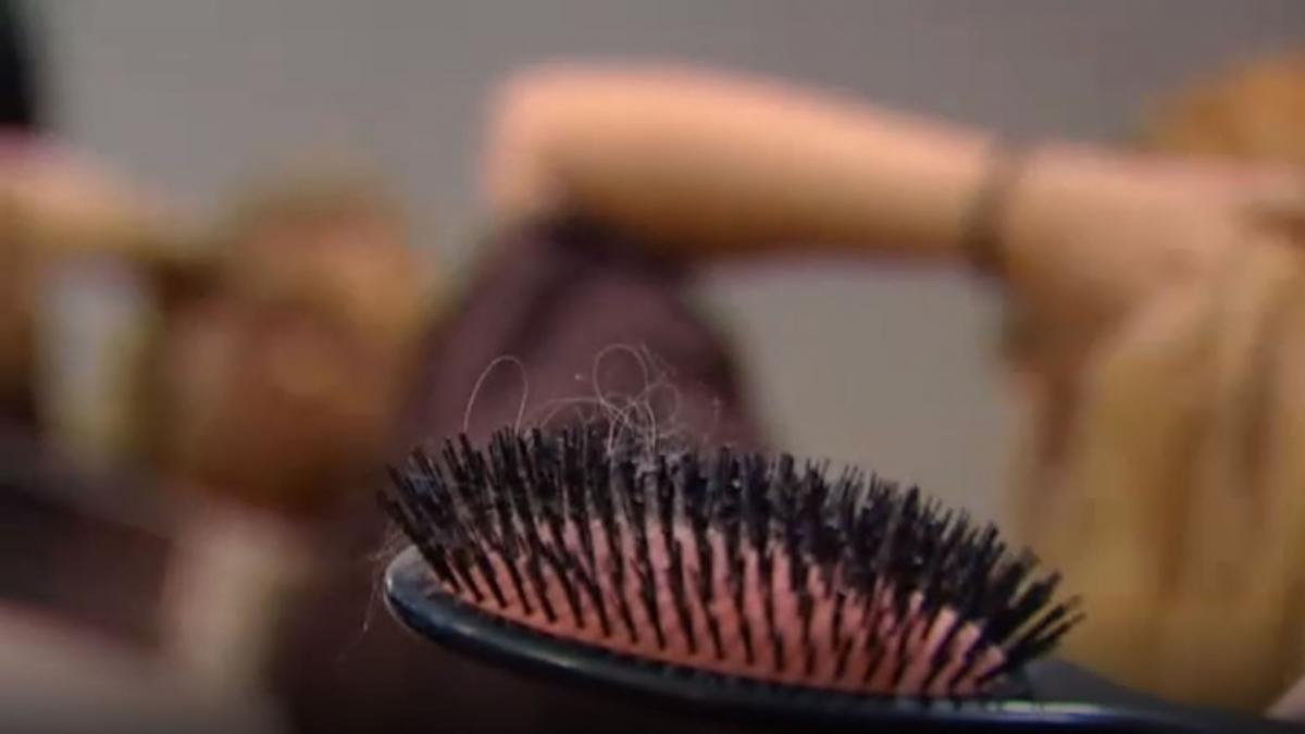 La caida del cabello, otra de las secuelas del coronavirus