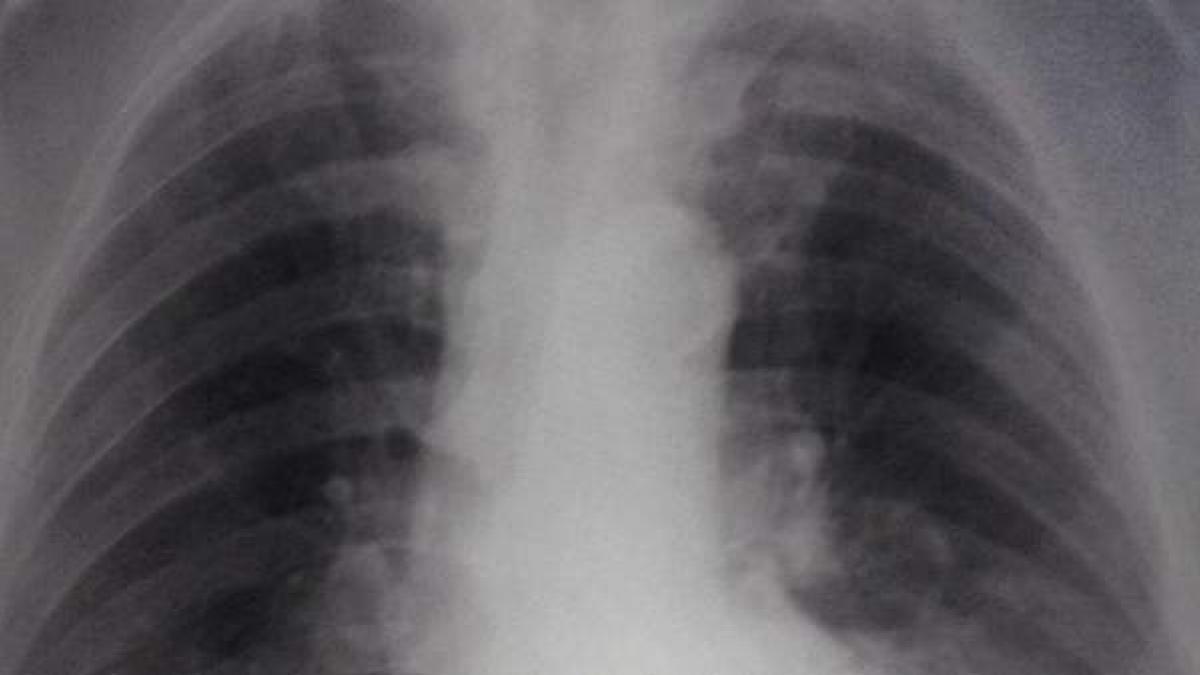 ¿Que es y para que sirve un broncodilatador?
