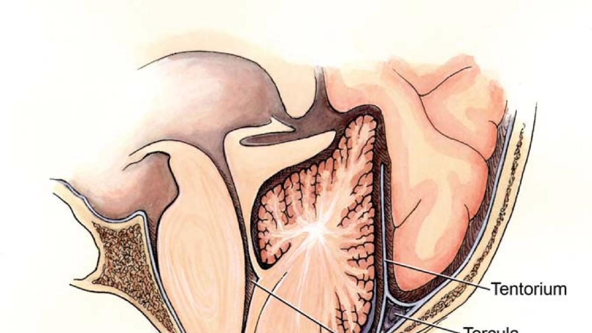 El sindrome Arnold Chiari: sintomas, causas y tratamiento