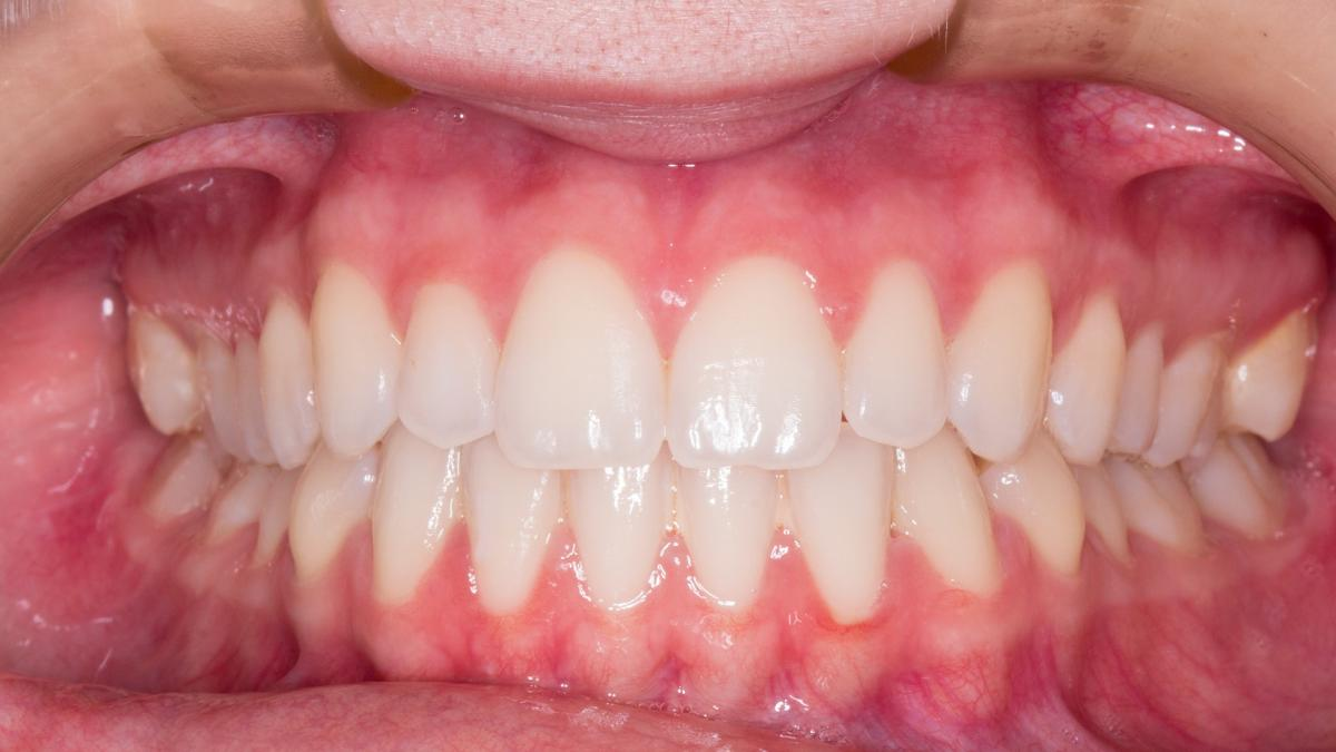 Los cuatro problemas en los dientes que aparecen tras el verano