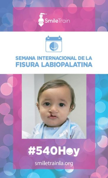 Semana de Fisura Labio Palatina: una patologia con baja mortalidad pero con muy alta morbilidad
