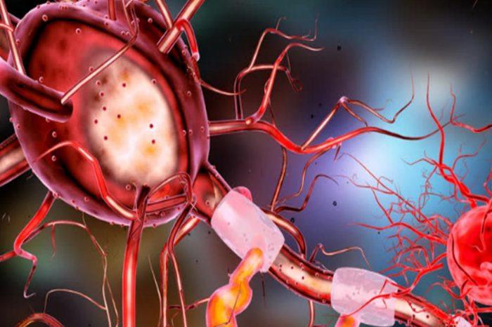 En que consiste el sindrome de Guillain-Barre, un raro sindrome asociado a algunos pacientes de Covid-19