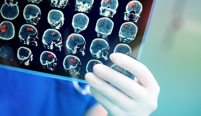 Localizan un area cerebral donde los tumores se ocultan de la quimioterapia
