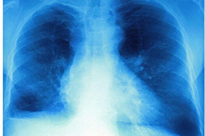 Pacientes Covid-19 podrian perder hasta el 80% de la capacidad pulmonar