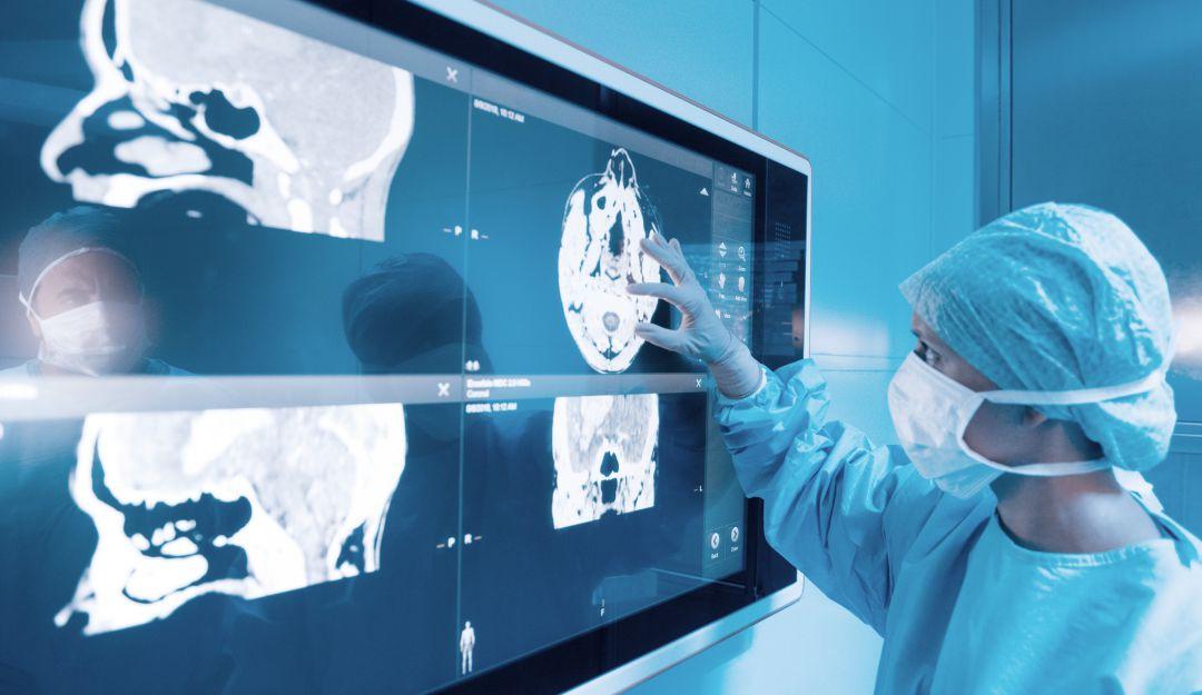 Al año mas de 45 mil personas sufren por ataques cerebrovasculares