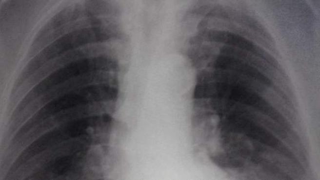 Descubren como se adhieren a los pulmones las bacterias que causan el 40% de neumonias atipicas