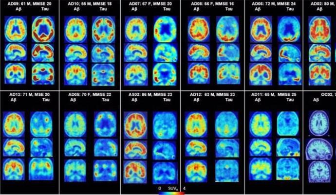 El gen de riesgo de Alzheimer puede quedar compensado por la accion de otro gen