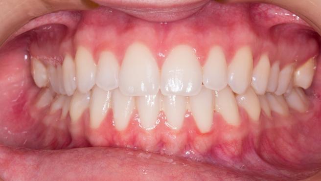 Investigadores descubren como la periodontitis puede causar demencia