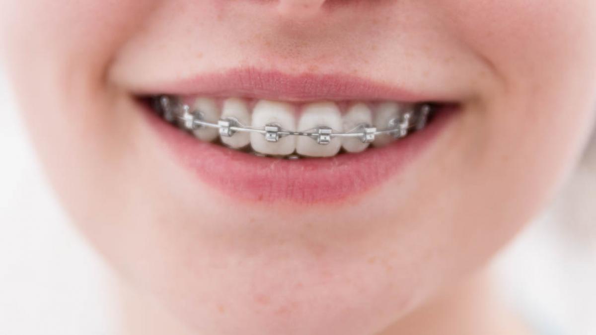 Que tipos de ortodoncia hay y en que se diferencian