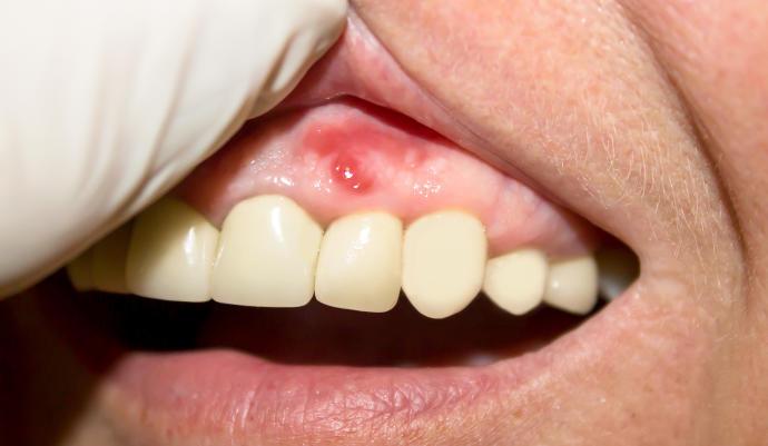 La periodontitis podria ser una causa de demencia