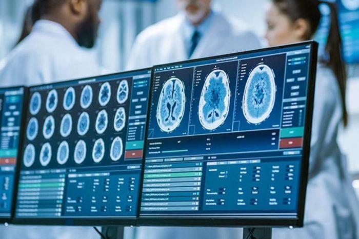 EANS: Barcelona acogera un congreso europeo neurocirugia con mas de 2.500 especialistas en 2023