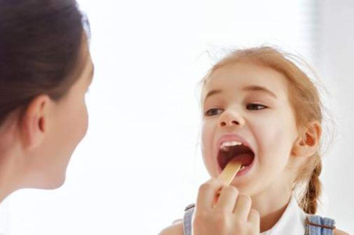Sintomas de placas en la garganta: ¿que son y como tratarlas?
