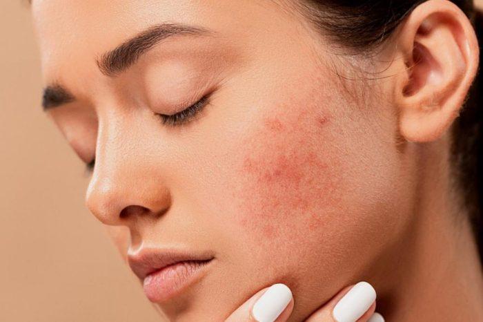 ¿Afectan los alimentos grasos al acne? Mitos y verdades