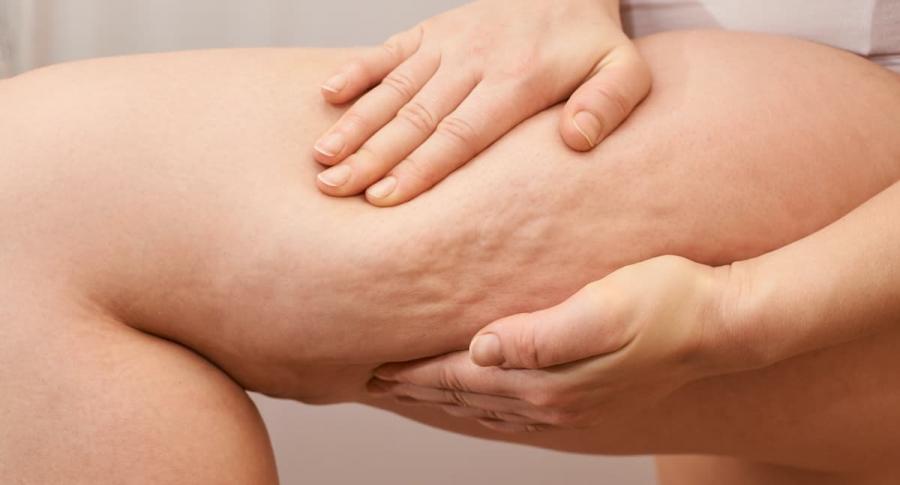 Celulitis: que es, cuales son las zonas mas afectadas y como se puede reducir