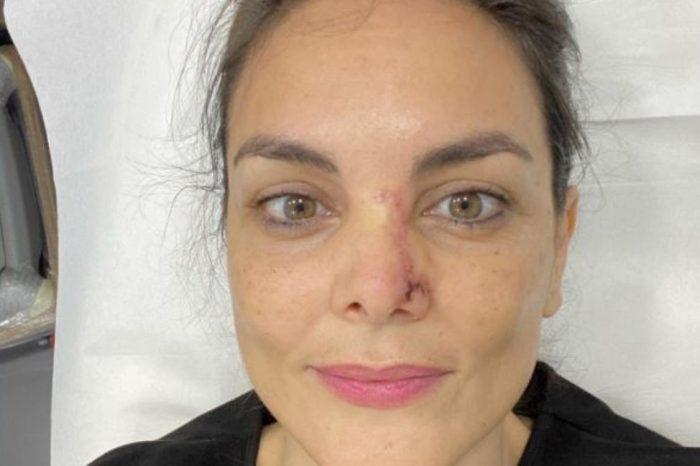 Como detectar a tiempo un cancer de piel como el de Monica Carrillo
