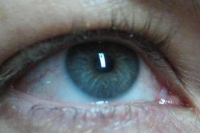 ¿Como aliviar el picor de ojos por la noche?