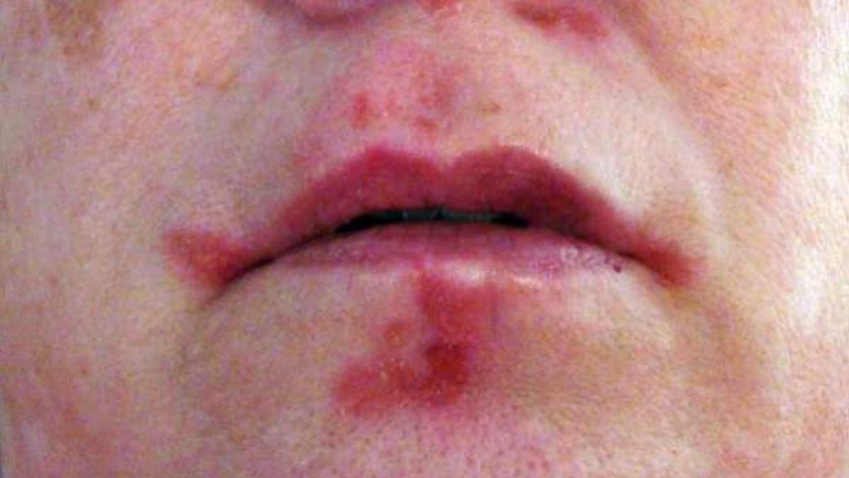 Las plaquetas pueden jugar un papel clave en el desarrollo del lupus, segun un estudio