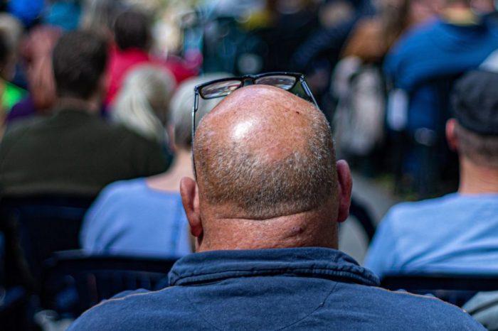 Estudio revela que el color del cabello infiere mucho en la calvicie