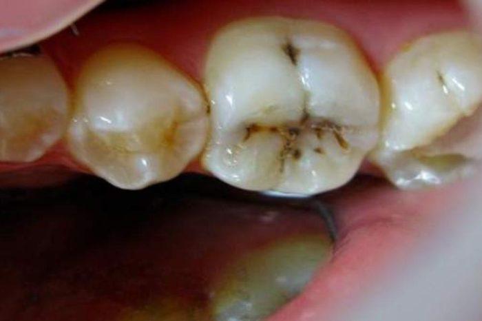 La ciencia pone foco en las caries: descubren como perciben los dientes el frio y buscan desarrollar un tratamiento