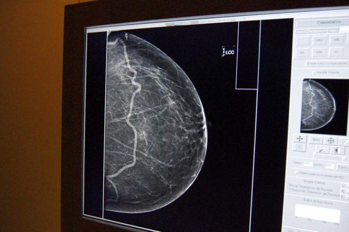 Descubren la combinacion de dos farmacos para combatir el cancer de mama