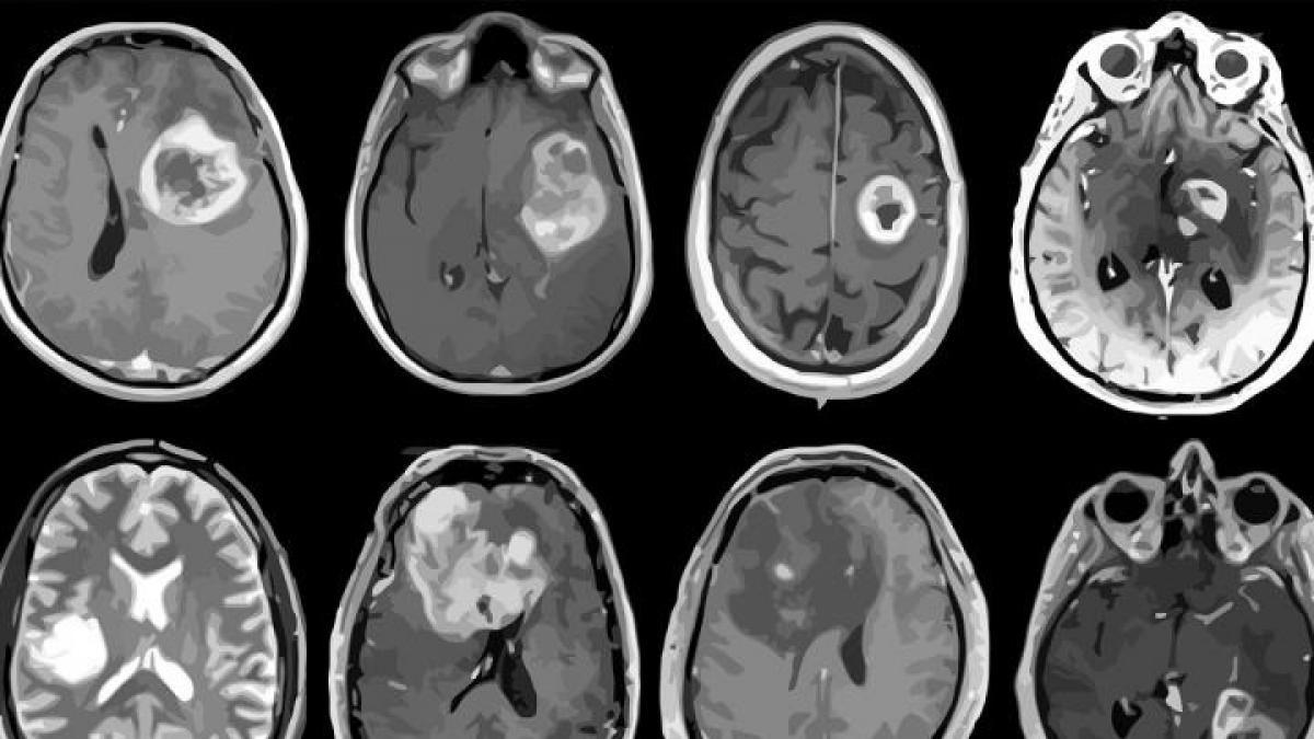 Se inyectan las primeras vacunas desarrolladas contra tumores cerebrales malignos con resultados positivos