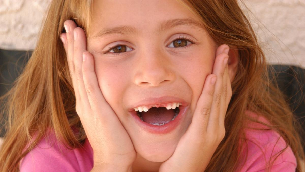 ¿Cuando preocuparse si los dientes de leche no se caen? ¿Puede deberse a alguna enfermedad?